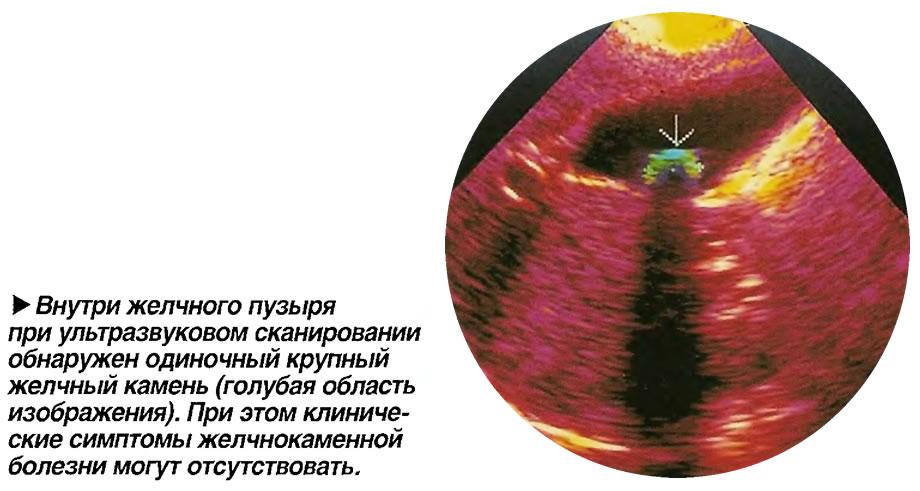 Внутри желчного пузыря при ультразвуковом сканировании обнаружен одиночный крупный желчный камень