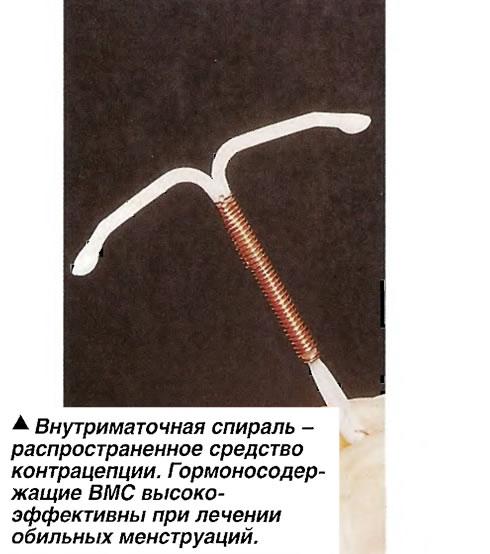 Внутриматочная спираль - распространенное средство контрацепции