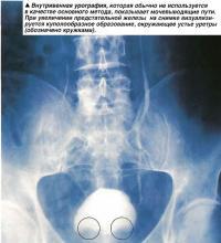Внутривенная урография