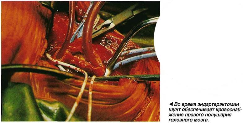 Во время эндартерэктомии шунт обеспечивает кровоснабжение правого полушария головного мозга