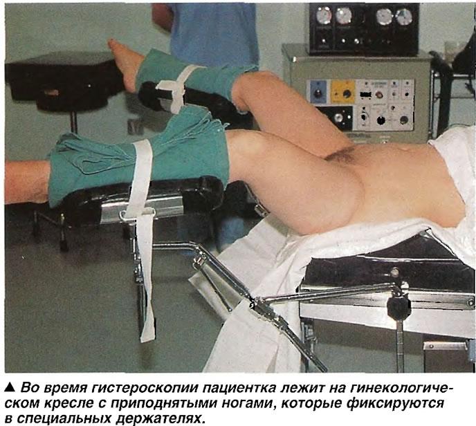 на гинекологическом кресле осмотр фото