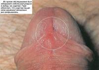 Во время обследования был обнаружен небольшой разрыв и рубцы на уздечке