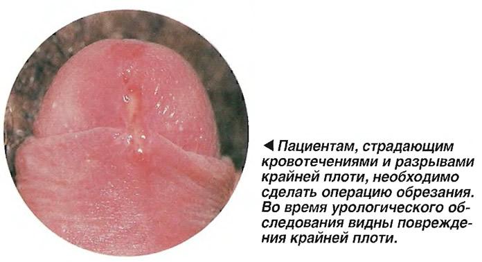 Во время урологического обследования видны повреждения крайней плоти