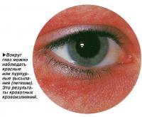 Вокруг глаз можно наблюдать красные или пурпурные высыпания
