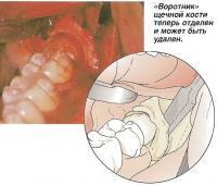 «Воротник» щечной кости теперь отделен и может быть удален