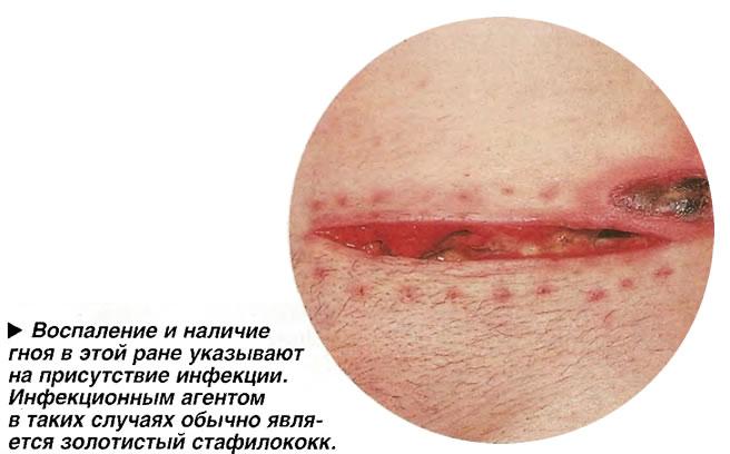 Воспаление и наличие гноя в этой ране указывают на присутствие инфекции