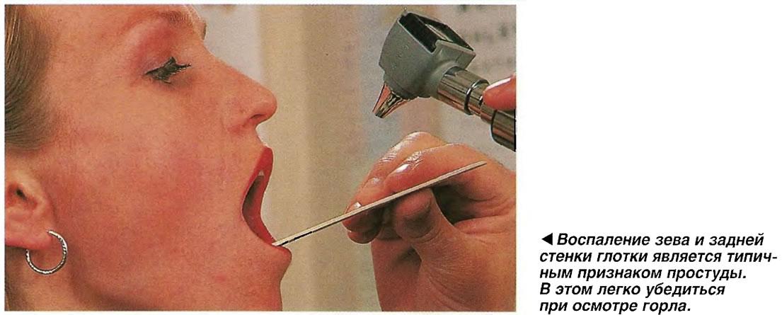 Воспаление зева и задней стенки глотки является типичным признаком простуды