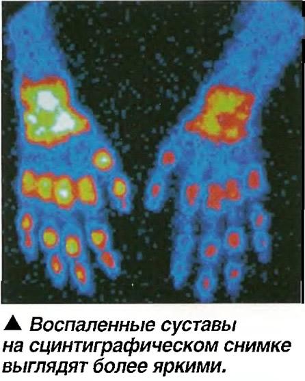 Воспаленные суставы на сцинтиграфическом снимке выглядят более яркими
