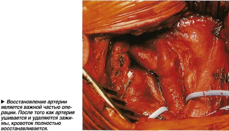 Восстановление артерии является важной частью операции