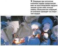 Восстановление хирургическим путем клапанов сердца либо полную замену