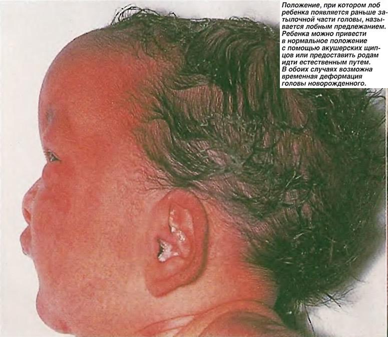 Возможна временная деформация головы новорожденного