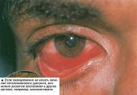 Возможно развитие воспаления в других органах, например, конъюнктивита