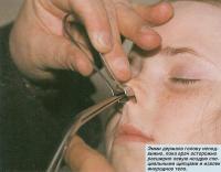 Врач осторожно расширил ноздрю щипцами и извлек инородное тело