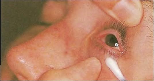 Врач пальцами поднимает верхнее веко глаза