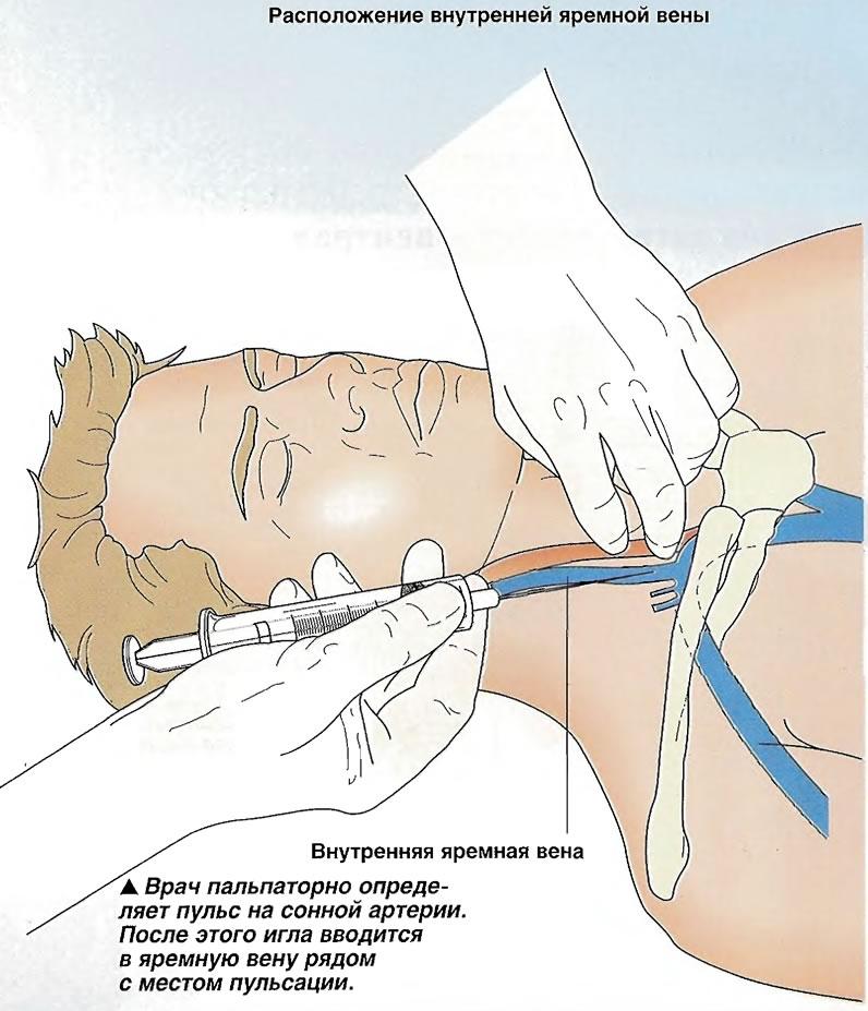 Врач пальпаторно определяет пульс на сонной артерии