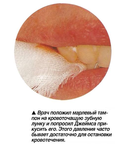 Врач положил марлевый тампон на кровоточащую зубную лунку и попросил Джеймса прикусить его
