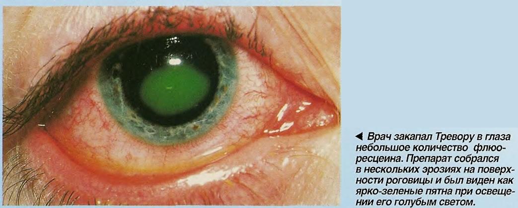 Врач закапал Тревору в глаза небольшое количество флюоресцеина