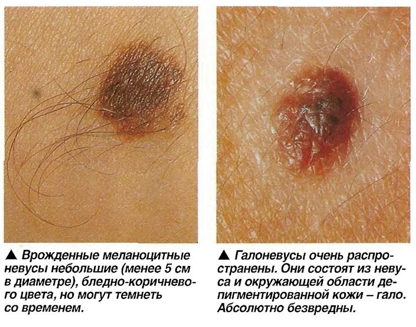 Врожденные меланоцитные невусы и Гапоневусы