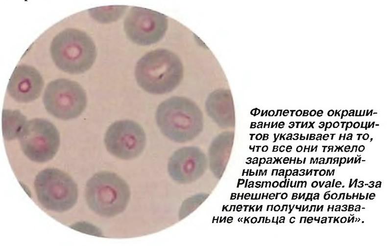 Все эритроциты тяжело заражены малярийным паразитом Plasmodium ovale