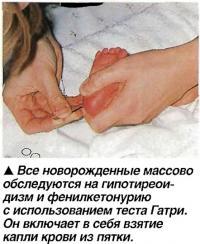 Все новорожденные массово обследуются на гипотиреои-дизм и фенилкетонурию