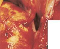 Второй обходной шунт верхним концом пришит к аорте