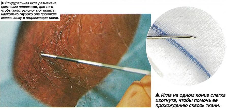 Введение эпидуральной иглы