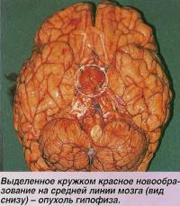 Выделенное кружком красное новообразование - опухоль гипофиза