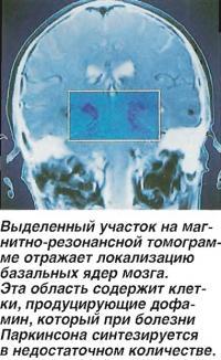Выделенный участок на магнитно-резонансной томограмме отражает локализацию базальных ядер мозга