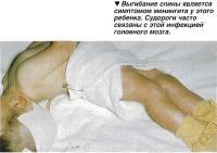 Выгибание спины является симптомом менингита у этого ребенка.