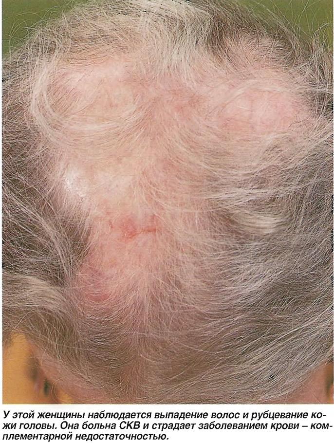 Выпадение волос и рубцевание кожи головы