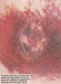 Высокая склонность к появлению кровоподтеков является побочным эффектом зидовудина