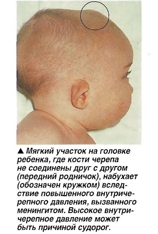 Повышенное внутричерепное давление у новорожденных признаки