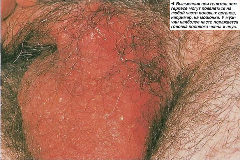 Высыпания при генитальном герпесе