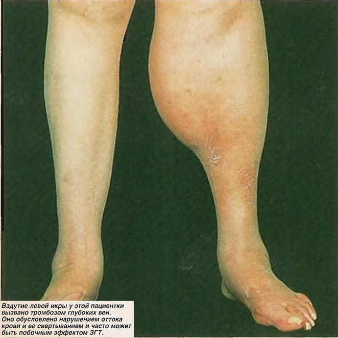 Вздутие левой икры у этой пациентки вызвано тромбозом глубоких вен