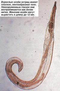 Взрослые особи остриц имеют плоское, лентообразное тело