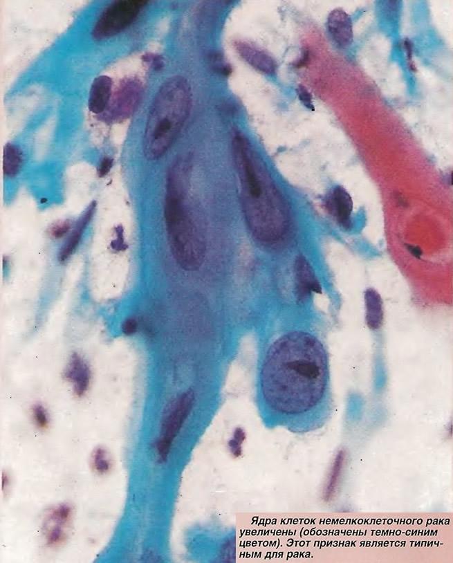 Ядра клеток немелкоклеточного рака увеличены