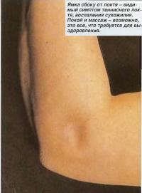Ямка сбоку от локтя - видимый симптом теннисного локтя, воспаления сухожилия