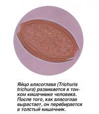 Яйцо власоглава развивается в тонком кишечнике человека