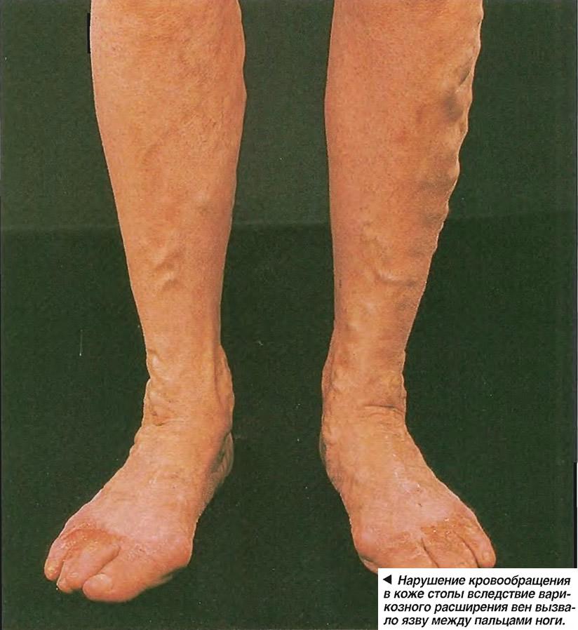 Лечение варикоза в домашних условиях - 32 рецепта.