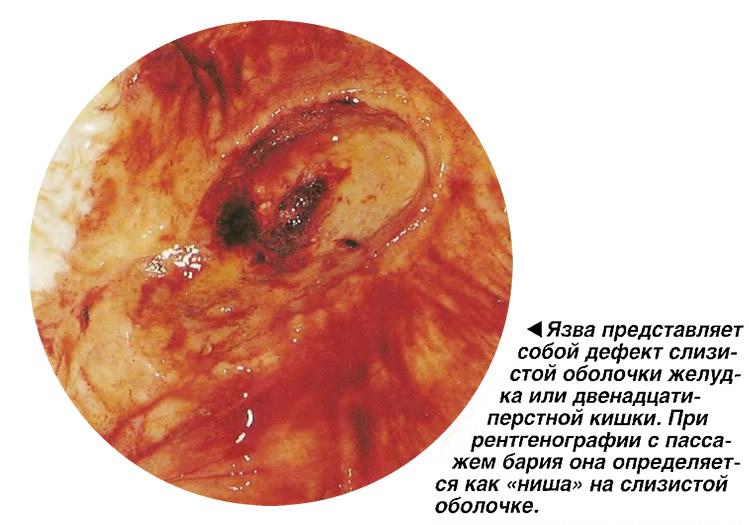 Язва представляет собой дефект слизистой оболочки желудка или кишки