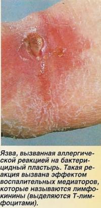 Язва, вызванная аллергической реакцией на бактерицидный пластырь