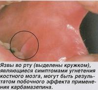 Язвы во рту, являющиеся симптомами угнетения костного мозга