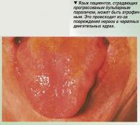 Язык пациентов может быть атрофичным