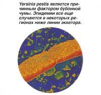 Yersinia pestis является причинным фактором бубонной чумы
