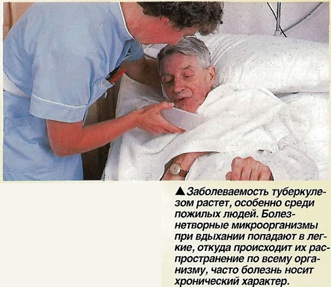 Заболеваемость туберкулезом растет, особенно среди пожилых людей