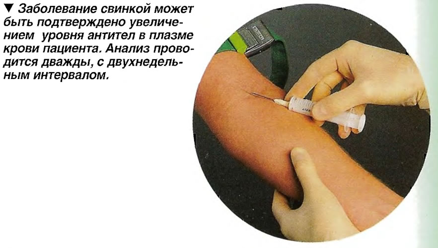 Заболевание свинкой может быть подтверждено увеличением уровня антител в плазме крови пациента