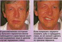 Заболевания лицевого нерва