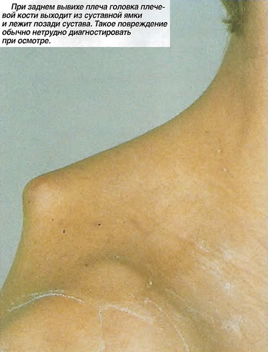 Симптом Лермитта