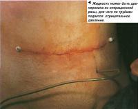Закрытие брюшной полости