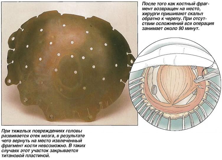 Закрытие краниостомы